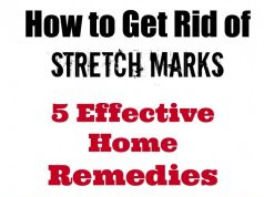 how-to-get-rid-of-stretch-marks
